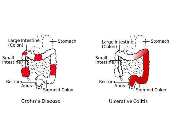 inflammatory-bowel-diseases-ibd
